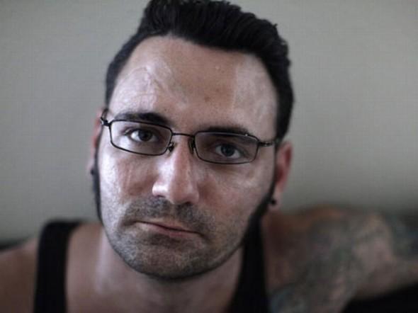 Ex Skinhead Remove Tatuagens Do Rosto Para Recome 231 Ar Vida