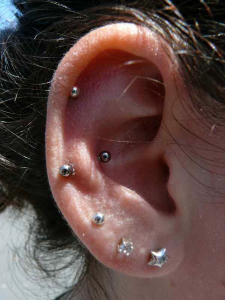 how to get rid of bump on daith piercing