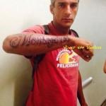 Reações alérgicas à tatuagem de Henna feita de forma irregular