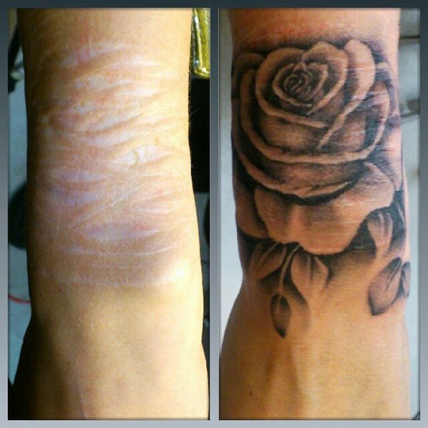 A beleza da cobertura de cicatrizes com tatuagens tinta for Scar tattoo cover up